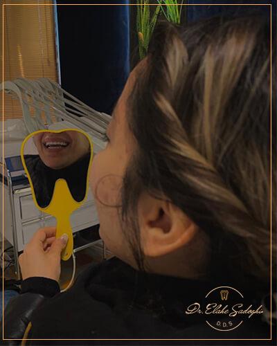 لمینت سرامیکی در زعفرانیه