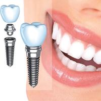 تغذیه مناسب ایمپلنت دندان