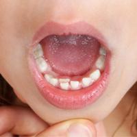 فلورزیس دندان