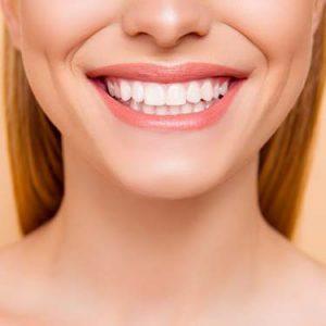 ویژگی های انواع کامپوزیت دندان