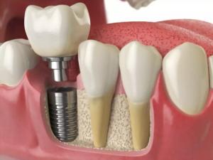 انواع برند ایمپلنت دندان