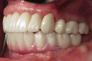 پیشگیری از عوارض ایمپلنت دندان