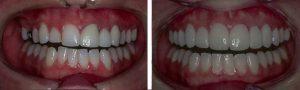 فرق ایمپلنت و روکش دندان