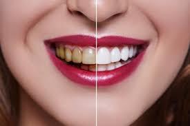تفاوت ایمپلنت و روکش دندان