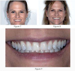 انواع لمینت دندان