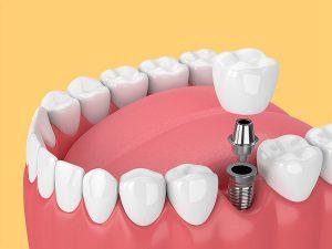 آخرین مرحله ایمپلنت دندان