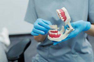 مراحل ایمپلنت دندان چیست؟