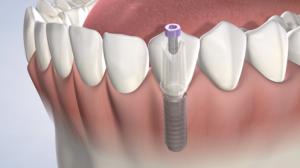 تاج روی ایمپلنت دندان