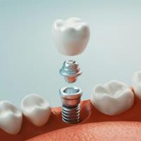 ایمپلنت دندان چیست؟ عملکرد ایمپلنت چگونه است؟