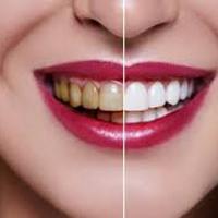 فرق ایمپلنت و روکش دندان؛ این دو با هم چه تفاوتی با هم دارند؟