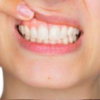 عوارض لمینت دندان چیست؟ برای پیشگیری از آنها چه کنیم؟