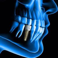 ایمپلنت دیجیتال دندان چیست