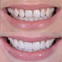 کامپوزیت دندان چیست؟ کاربردها و موارد استفاده آن