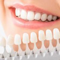 معرفی انواع ایمپلنت دندان و انواع روش های ایمپلنت 2021