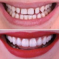لمینت دندان چیست؟ بررسی انواع لمینت دندان
