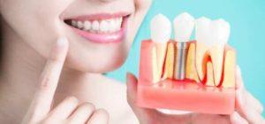 تاثیر و عملکرد ایمپلنت دندان