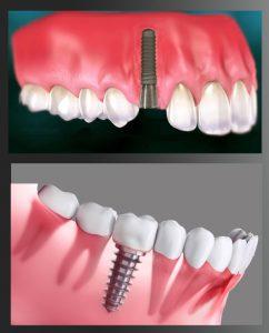 قرار دادن پایه ایمپلنت دندان