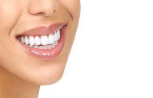 انواع برند کامپوزیت دندان