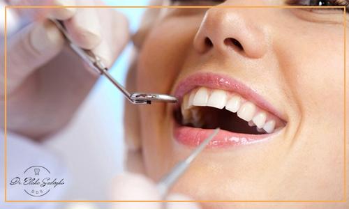 نکات مهم درباره ایمپلنت دندان