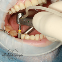 پیوند استخوان درایمپلنت دندان